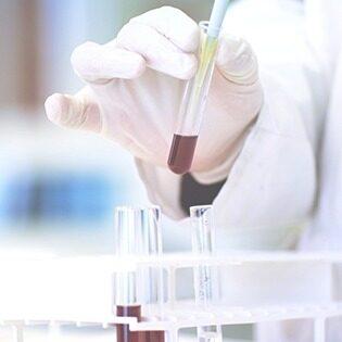 exames-laboratoriais-img